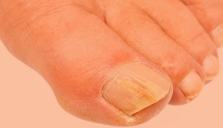 Как лечить грибок ногтей на ногах в домашних условиях
