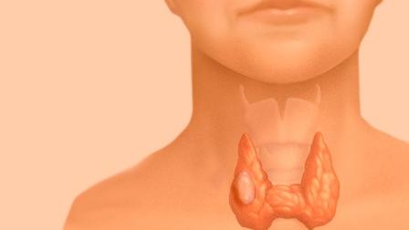 рак щитовидной железы что это такое