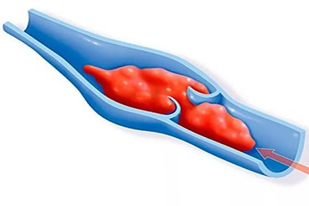 лечение тромбофлебита нижних конечностей