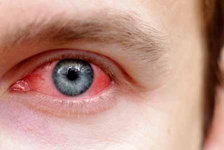 аллергическая реакция на глазах
