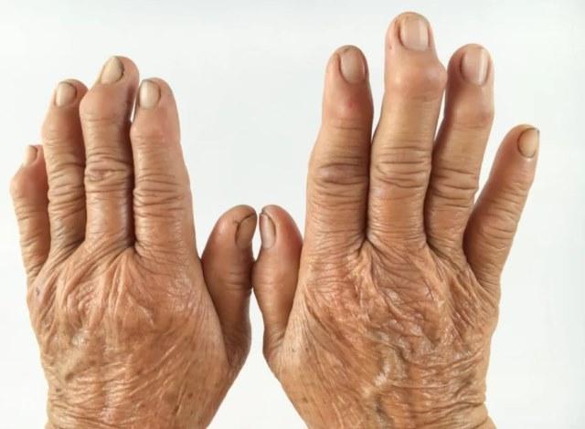 Ревматоидный артрит что это такое