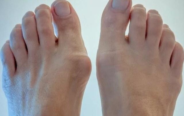шишки на суставах пальцев рук и ног