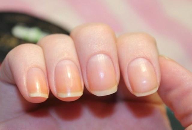 желтые ногти на руках что это